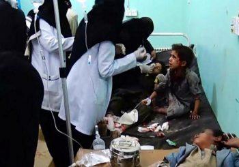 UŽAS U JEMENU U napadu ubijeno 29 djece