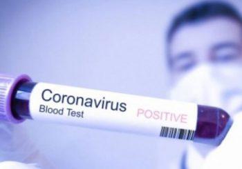 Kod 318 osoba u Republici Srpskoj potvrđeno prisustvo virusa korona
