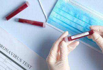 PET OSOBA PREMINULO: Još 47 pozitivnih na virus korona u Republici Srpskoj